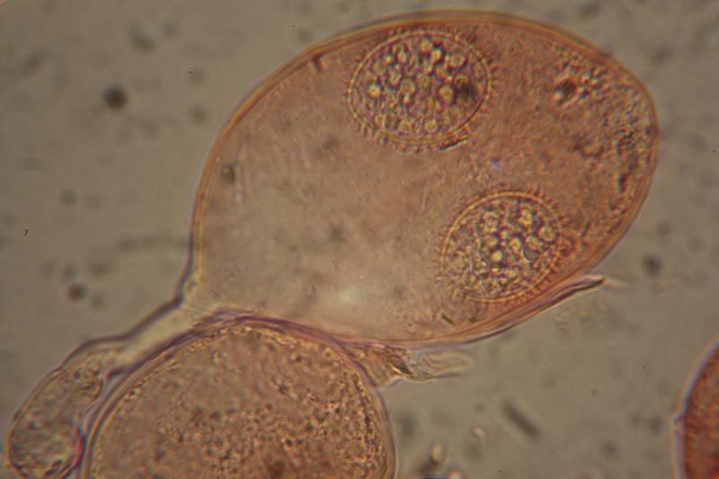 Tuber rufum aschi con spore.jpg